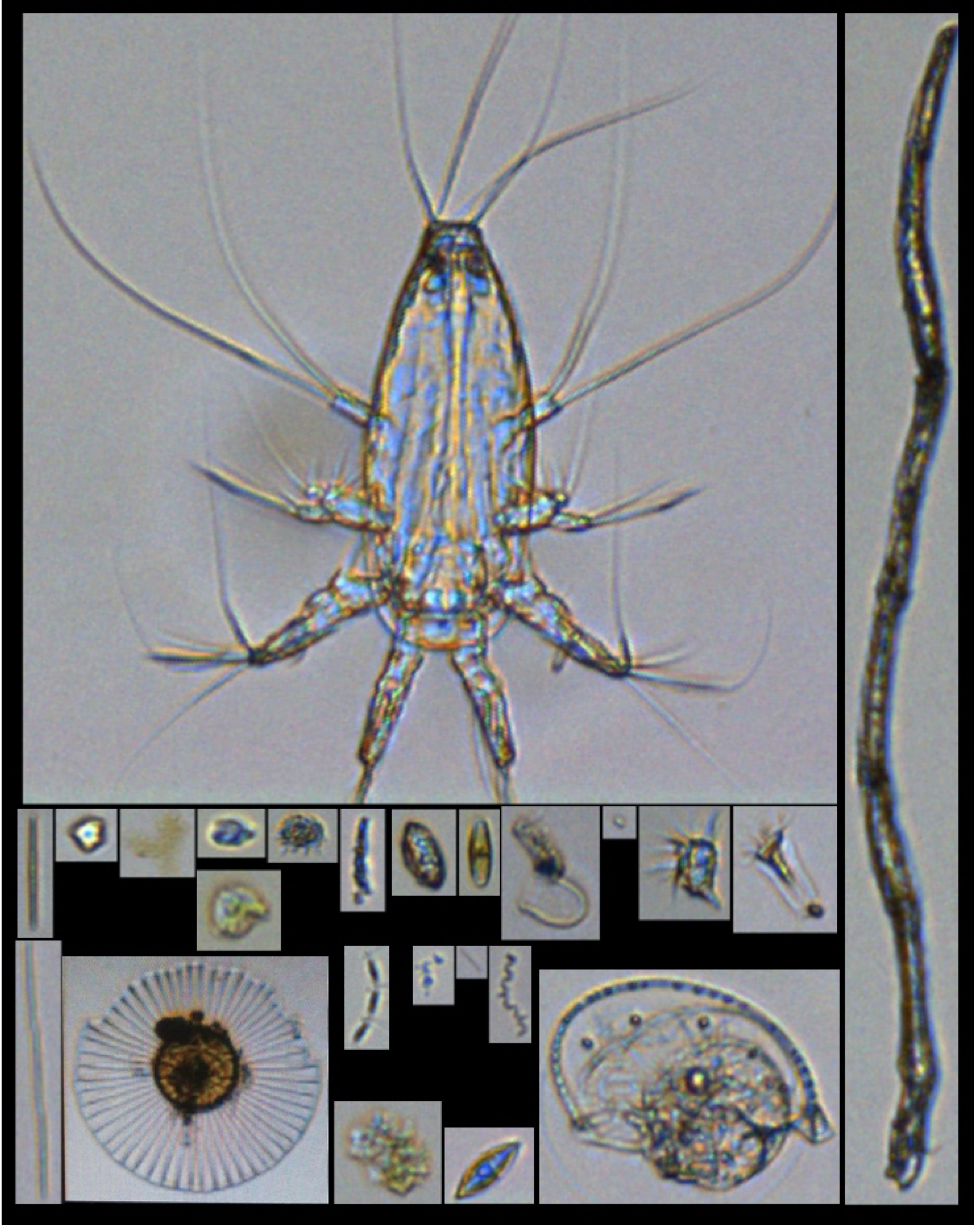 Figure 4: Plankton from the FlowCam images.