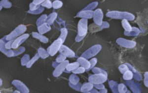 Microscopic image of the pathogen Vibrio that can contaminate shellfish. Image credit: NOAA