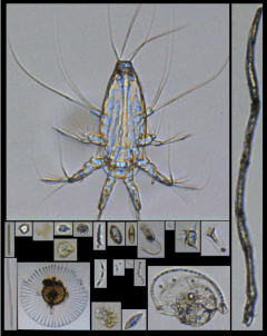 Plankton from the FlowCam images. Photo Credit: NOAA.